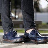 Conteyner 110 Rugan Laci Casual Erkek Ayakkabı